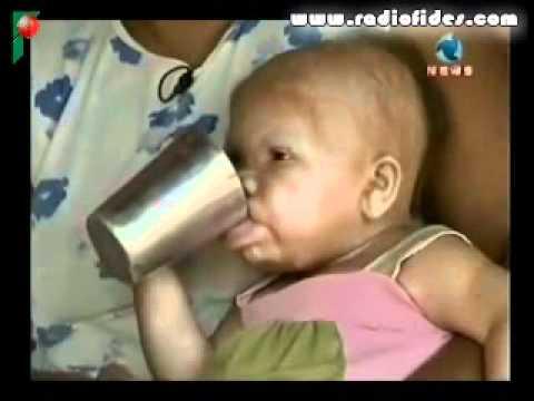 Mujer de 30 años en un cuerpo de bebe