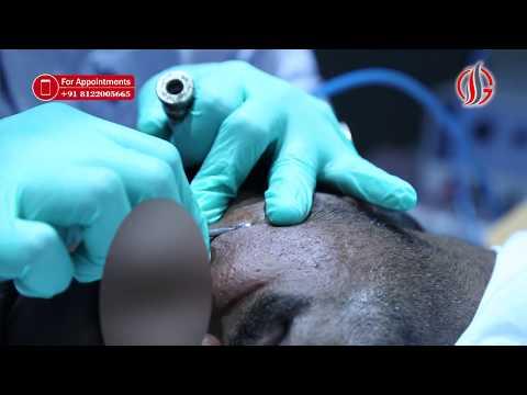 How to Remove BLACK SPOTS , DARK SPOTS & ACNE SCARS -  Tamil