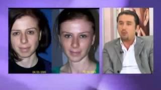 Op Dr Mustafa Ali Yanık Ameliyatsız Estetik Uygulamaları İle İlgili Bilgi Veriyor