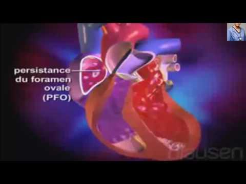 Malformation cardiaque congenitale : définition, causes et origine