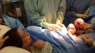 Přirozený porod císařským řezem