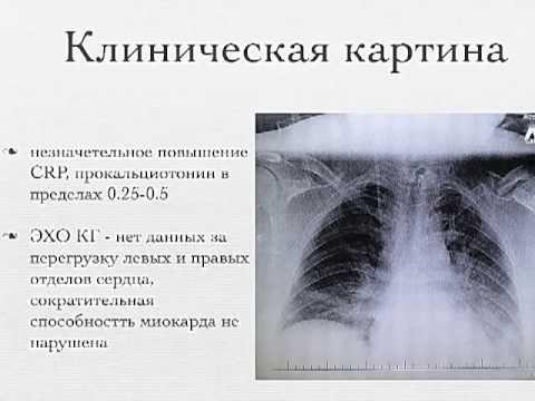 Клиническое наблюдение тЧМТ и септический шок. Сычев А.А. V Беломорский