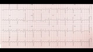 Atrial flutter is a cardiac arrhythmia characterized by atrial rates of 240-400 beats/min and some degree of atrioventricular (AV) node conduction block. For the most part, morbidity and mortality are due to complications of rate (eg, syncope and congestive heart failure [CHF]). See the image below.---------------------------------------------SUBSCRIBE and LIKE---    http://goo.gl/c8vHHgBest Medical Books Link Below-----   http://goo.gl/XHvpZABest Medical Instrument Link Below-----   http://goo.gl/pW1PZt----------------------------Find us on Facebook :https://www.facebook.com/groups/354791764704980/https://www.facebook.com/Medicalvideosfordoctorshttps://www.facebook.com/freemedicaltextbooksJoin Our Forum: http://www.medicalbook.org