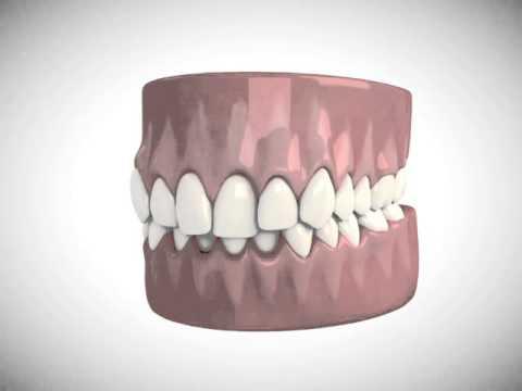 Inman Aligner - Magee Dental Care - Dentist Lurgan - Adult Teeth Straightening - Orthodontics
