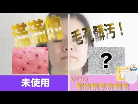 【 美容洗顔 】VCOマイルドソープ 未使用 と使用