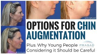 Video Why Chin Augmentation in Young People Needs Careful Consideration, and Conservative Treatments MP3, 3GP, MP4, WEBM, AVI, FLV Desember 2018