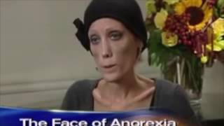 Nov 22, 2016 ... Anorexia Sufferer Reacts to Jeremy Hunt's Mental Healthcare ... Anorexia nTreatment Experiment - Inside My Mind - Earth Lab - Duration: 4:02.