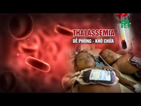 Thalassemia - Dể phòng khó trị