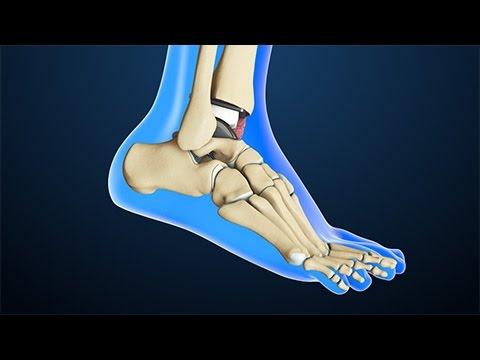 sostituzione della caviglia con protesi! interessante video in 3d!