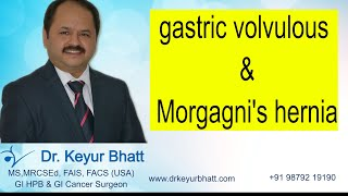 Lap : Hiatus hernia with gastric volvulous with Morgagni's hernia - repair