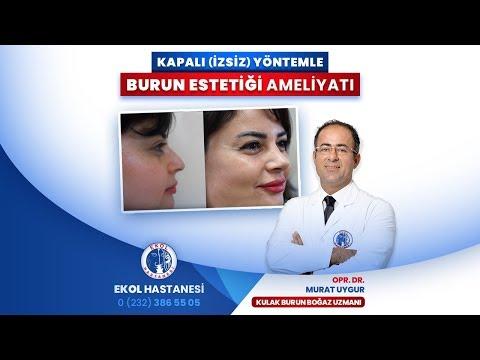 Kapalı (İzsiz) Yöntemle Burun Estetiği - Opr. Dr. Murat Uygur - İzmir Ekol Hastanesi