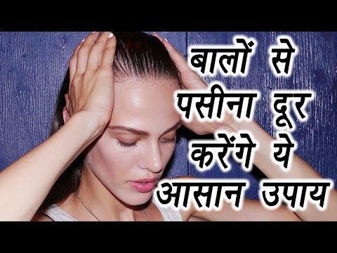 Hair Sweating Remedy, Get rid of Hair sweat | बालों से पसीना दूर करेंगे ये आसान उपाय| Boldsky