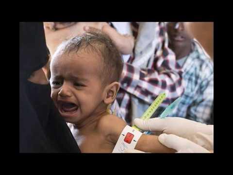 Yemen cholera crisis: UN condemns 'man-made scandal' (+18)