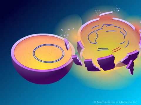 peniciline - Developed and produced by http://www.MechanismsinMedicine.com Animation Description: This animation starts with the explanation of bacterial cell wall synthe...