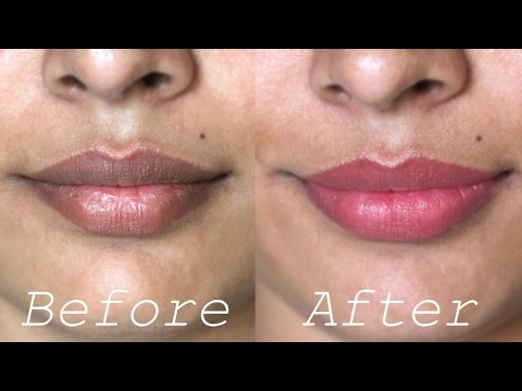 , title : 'How to Lighten Dark Lips Naturally - Rapid Home Remedies'