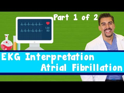 "15 Second EKG a fib ""Atrial Fibrillation"""