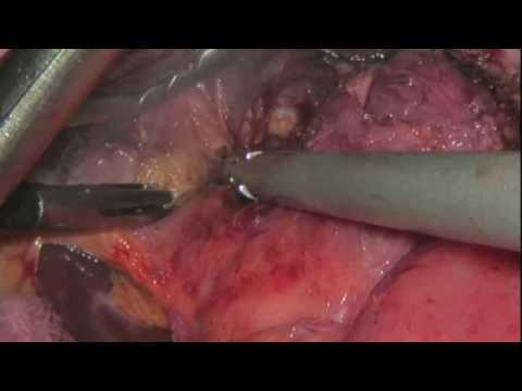 Anastomotic Ulcer in MGB complicated by a gastro-gastric fistula (step by step procedure)