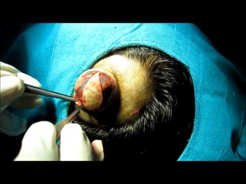 Large Sebaceous Cyst Scalp Removal Surgery