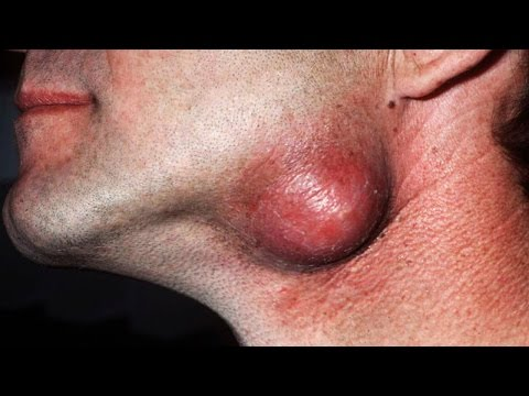 Sebaceous Cyst, Dermoid Cyst, Scarification, Medical Removals, and Largest Tumors