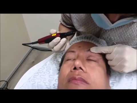 Surgery for Eyelid with Plasma sublimation, performed by Dr. Kee Yong Seng