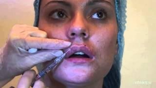Увеличение губ (моделирование губ) осуществляется путем инъекций в губы гелей (филеров), на основе стабилизированной гиалуроновой кислоты.