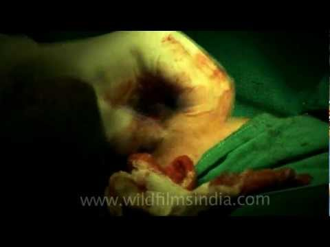 Cutting the cyst out of the breast..