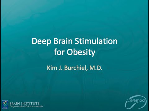 Kim Burchiel: Deep Brain St...