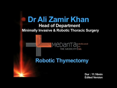 Robotic Thymectomy - Edited version