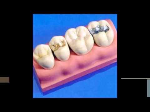 Как сделать пломбу для зуба самому себе
