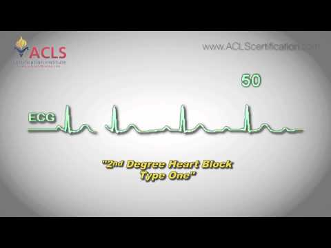 Second Degree Heart Block Type One