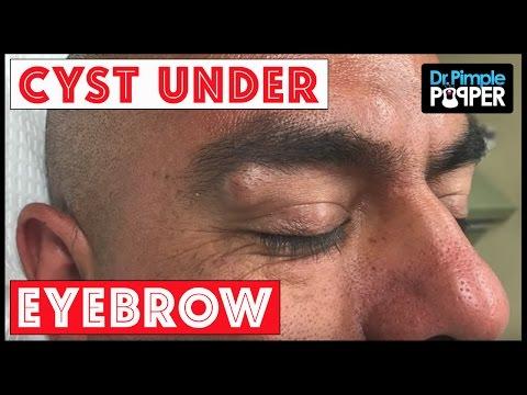 Eyebrow Cyst Extracted