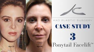 Case Study 3: Zonia (Ponytail Facelift™ Technique)