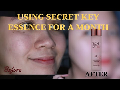 Using Essence for 1 Month | SK-II DUPE : Secret Key Treatment Essence Review (Philippines)