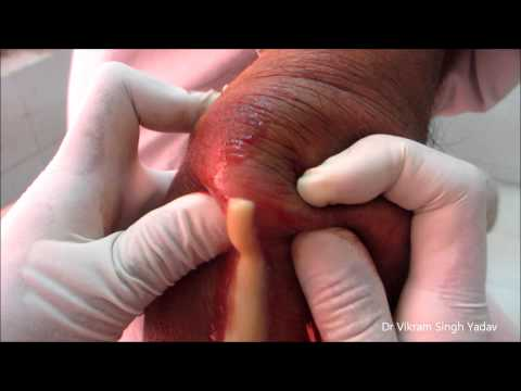 Смотреть онлайн видео Drainage Of Large Abscess ...: vidashki.ru/?video=Drainage_Of_Large_Abscess__Elbow_Joint&videohost...