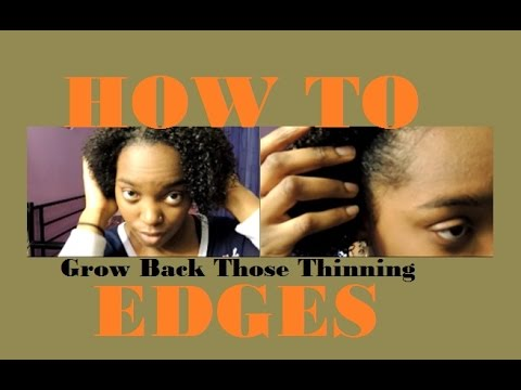 How I Grew Back My Thinning Edges | 3 Tips & Tricks for Natural Hair