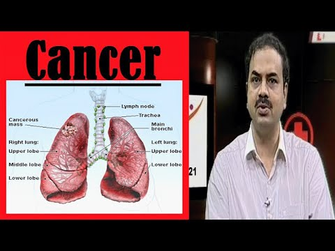 Reasons for Lung Cancer and Treatment | Health File : TV5 News