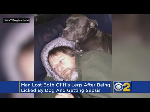 Dog's Lick Causes Blood Infection, Man Has Limbs Amputated