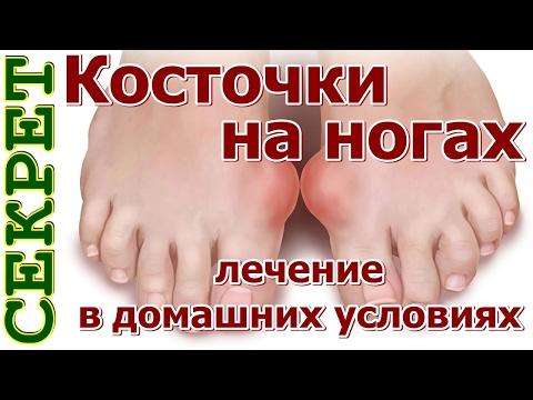 Косточки на ногах лечение (видео)