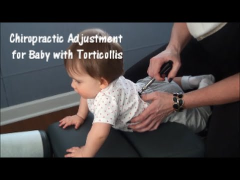 Chiropractic Adjustment for Baby with Torticollis