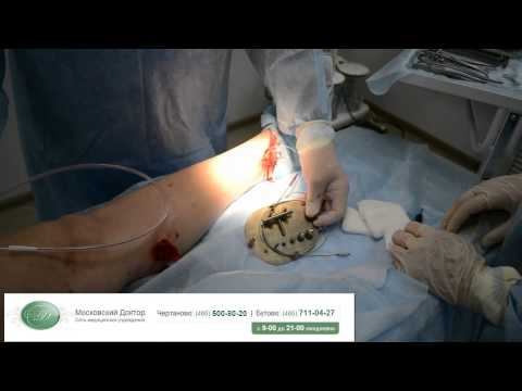 Комбинированная флебэктомия,удаление вен
