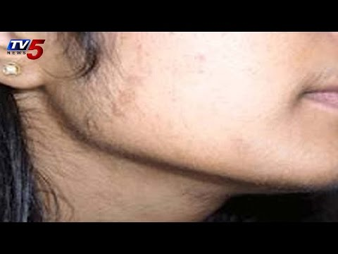 Vibes | Suggestions for Unwanted Hair Problems : TV5 News