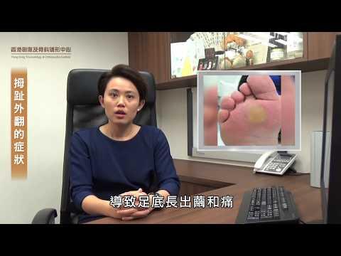 拇趾外翻診斷與治理