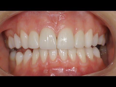 Виниры без обточки зубов. Люминиры. Veneers without teeth preparation. Carillas Dentales. 牙齿镶