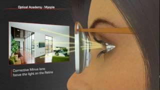 Vision 101: Myopia