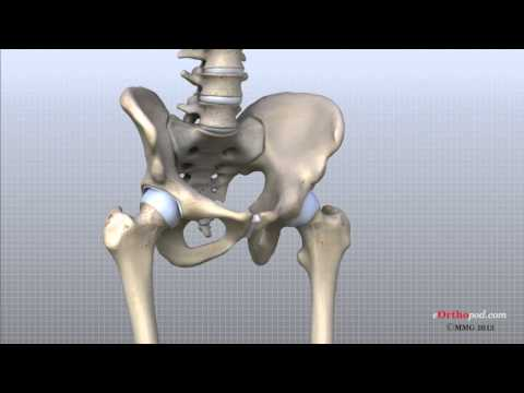 hip - In this episode of eOrthopodTV, orthopaedic surgeon, Randale C. Sechrest, MD, narrates an animated tutorial on the anatomy of the hip joint.