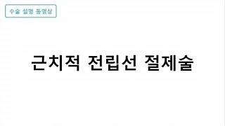 근치적 전립선 절제술 미리보기