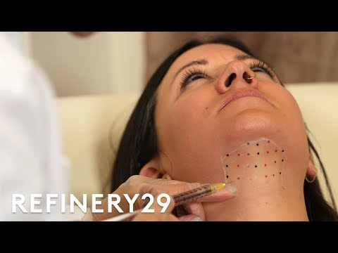 Kybella Double Chin Removal Treatment Up Close   Macro Beauty   Refinery29