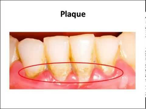 Science - Teeth structure & dental problems: Cavity, Plaque - CBSE board (English)