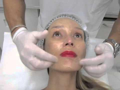 comment traiter les taches noires sur le visage