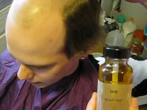 How to prepare your scalp to install a hair piece part 2.